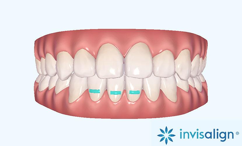 治療を始める前に治療終了までの歯の動きを確認出来る
