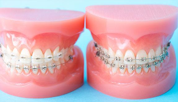当院の矯正歯科治療