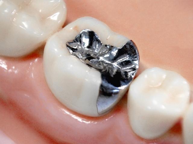 銀歯が気になる